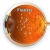 น้ำวุ้นในตาเสื่อม (Vitreous Floater)
